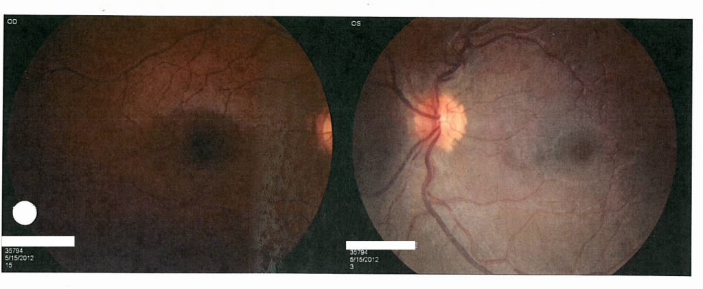 One of the many eye images taken to find out the damage done to my sister's eyes.